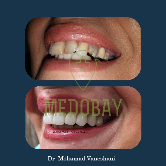 Dr Ferdosian - Before & After Dental Implant Pictures