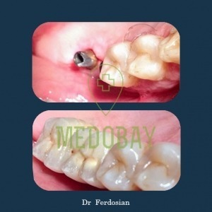 Dr Ferdosian - Before & After Dental Implant 02