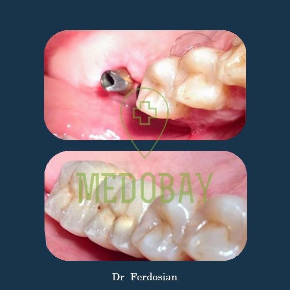 الدكتور فردوسيان - قبل وبعد زراعة الأسنان