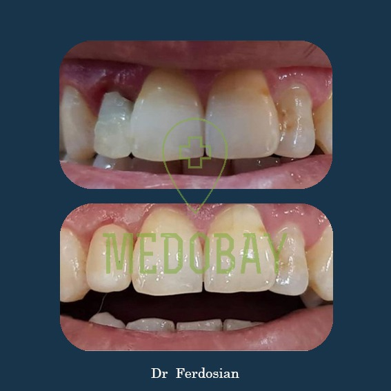 Dr Ferdosian - Before & After Dental Implant 03