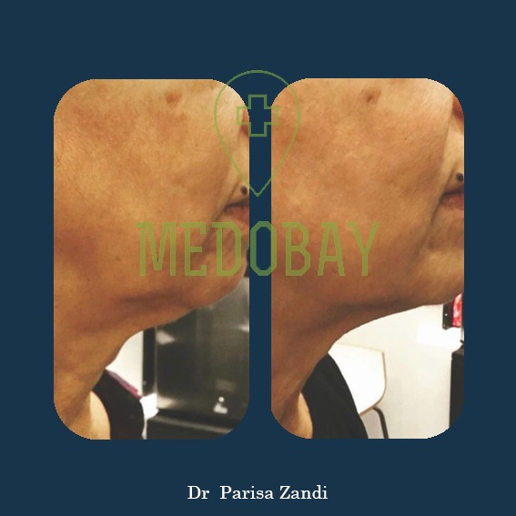 Dr Parisa Zandi Face Laser Therapy Before After Picture 1