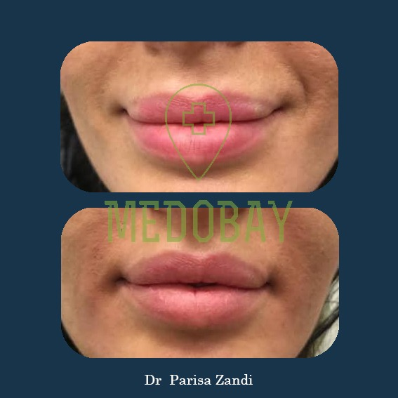 Dr Parisa Zandi Gel Injection Before After Picture