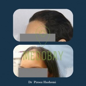Dr Parisa Zandi Female Hair Transplant Before After Picture