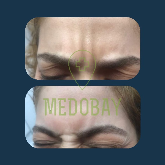 Dr. Parisa Zandi - Botox & filler injection - Before & After Picture