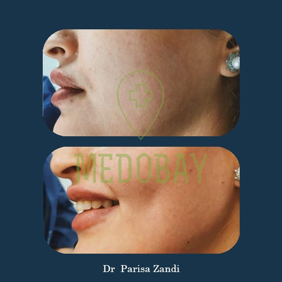 Dr. Parisa Zandi - Chin and Cheek Augmentation - Before & After Picture 01