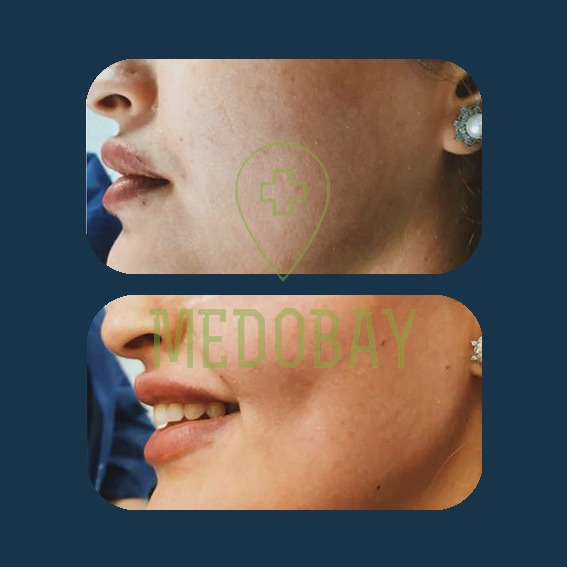 Dr. Parisa Zandi - Chin and Cheek Augmentation - Before & After Picture