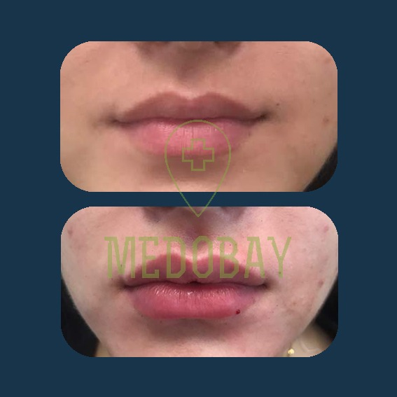 Dr. Parisa Zandi - Filler Injection - Before & After Picture