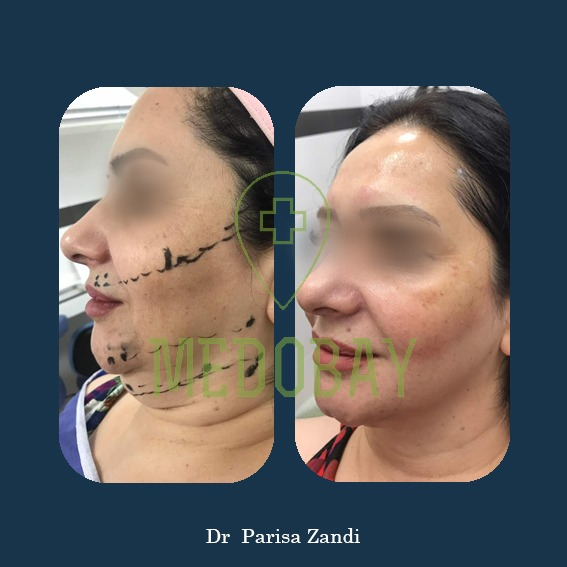 Dr. Parisa Zandi - Thread Face Lifting - Before & After Picture