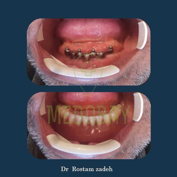 Dr. Rostamzadeh - Dental Implant - Before & After Picture