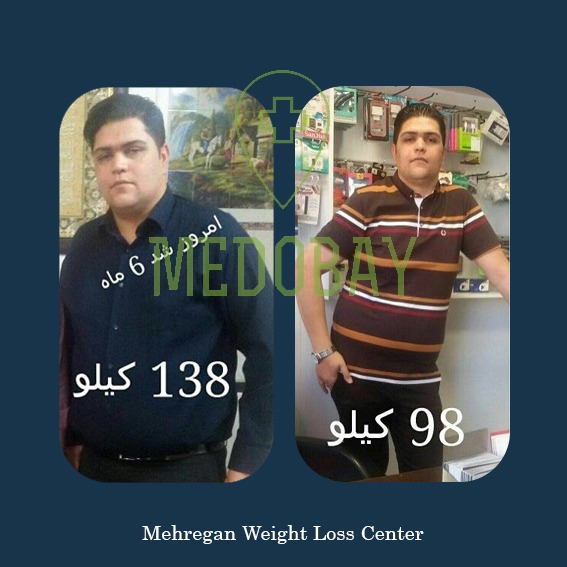 Gastric Bypass - Before After Picture Weight Loss Kerman