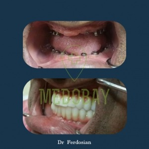 Dr Ferdosian Dental Implant Before After