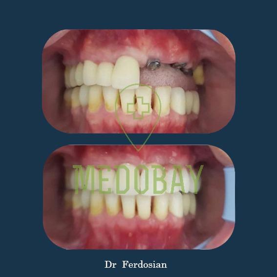 Dr Ferdosian Dental Implant Before After