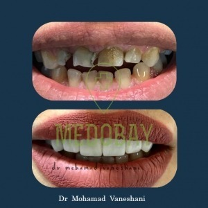 Dr Vaneshani Cosmetic Dentistry Before After