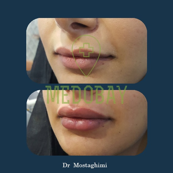 Dr Mostaghimi - Hair and Beauty - Before & After - Ahvaz