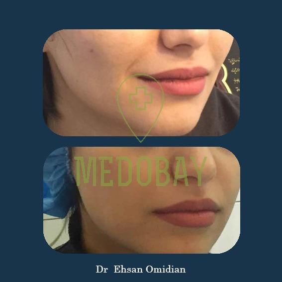 Dr Omidian Before & After Filler Injection Ahvaz