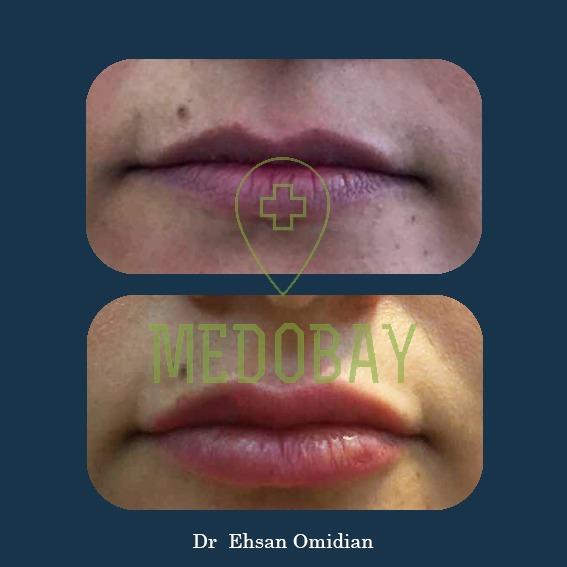 Dr Omidian Before & After Gel Injection Ahvaz