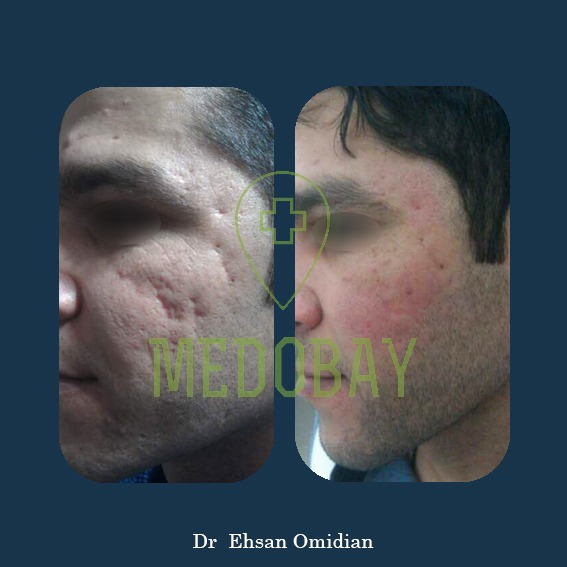 Dr Omidian Before & After Filler Injection Ahvaz 1