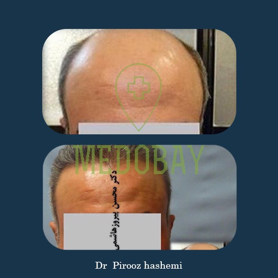 Gandi Hospital Tasvir Javani Hair Transplant Before and After Picture