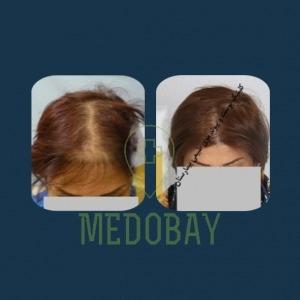 Gandi Hospital Tasvir Javani Female Hair Transplant Before and After Picture