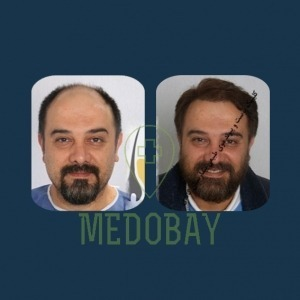 Gandi Hospital Tasvir Javani Hair Transplant Before and After Picture