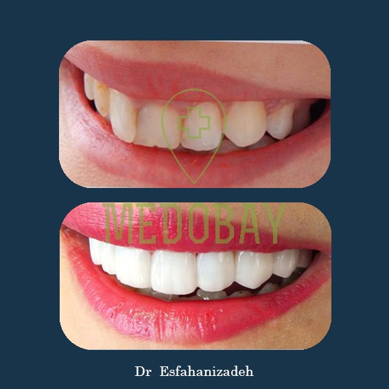 Dr Esfahanizadeh Dental Implant Before After Picture