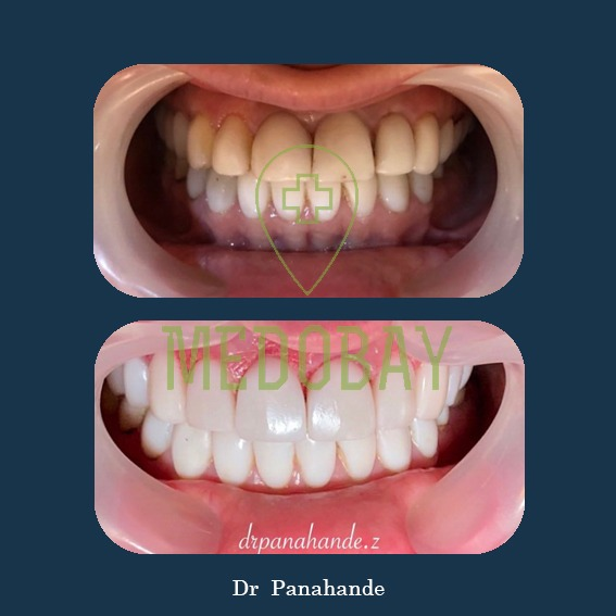 Dr Panahandeh - Before After Picture Cosmetic Dentistry - Tehran