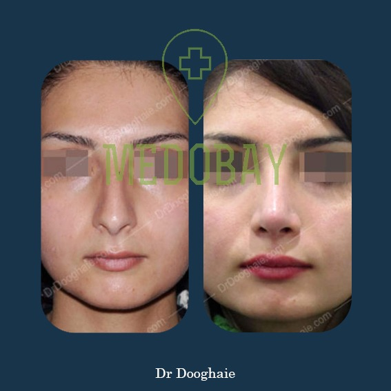 Rhinoplasty procedures and its cost in Iran Book NOW | Medobay