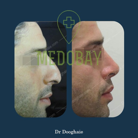 Rhinoplasty Nose Job Before After Picture Tehran