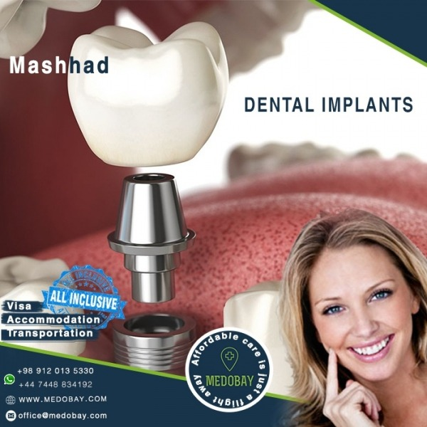 Dental Implant Mashhad