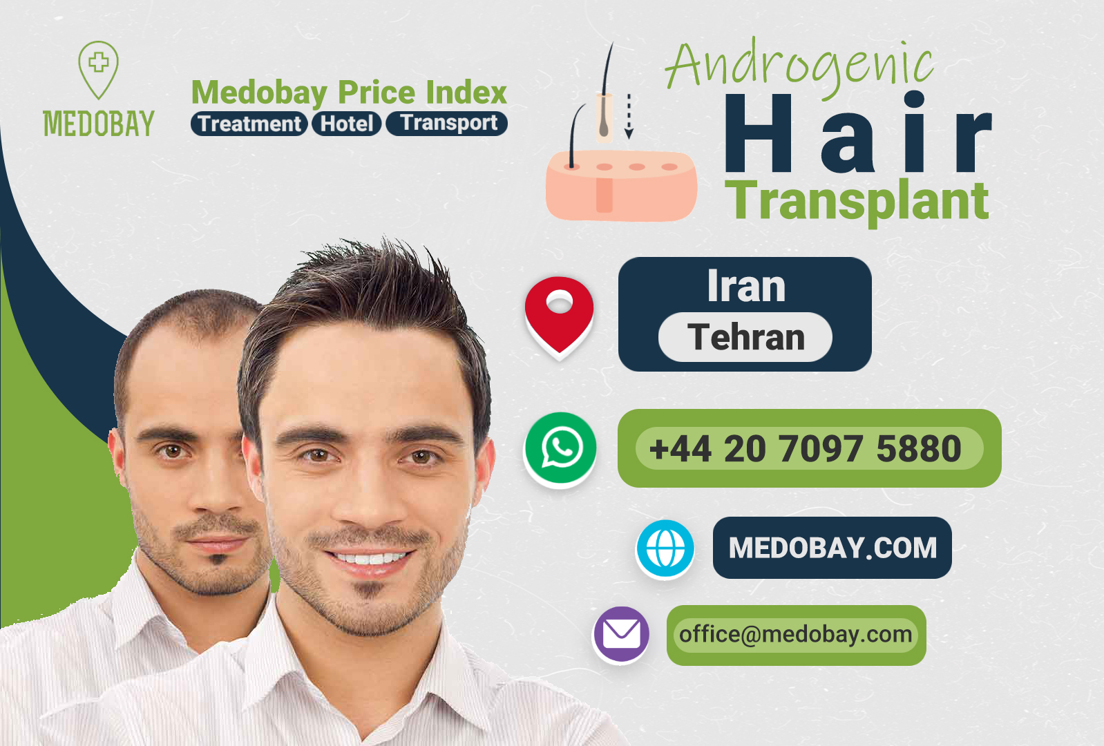 Androgenic Hair Transplant Tehran