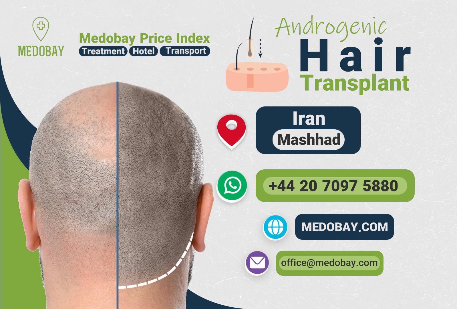 Androgenic Hair Transplant Mashhad