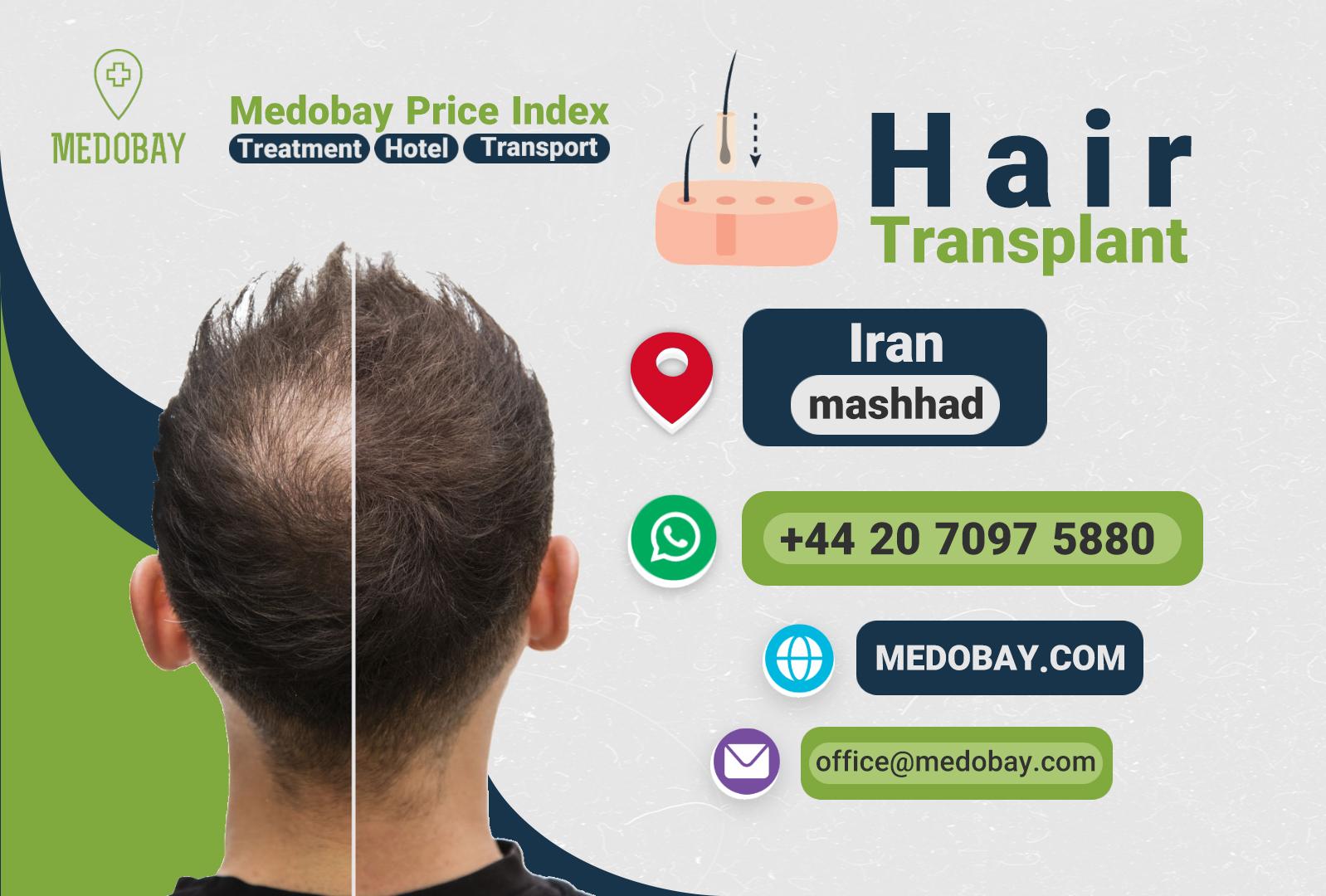 Hair Transplant Mashhad
