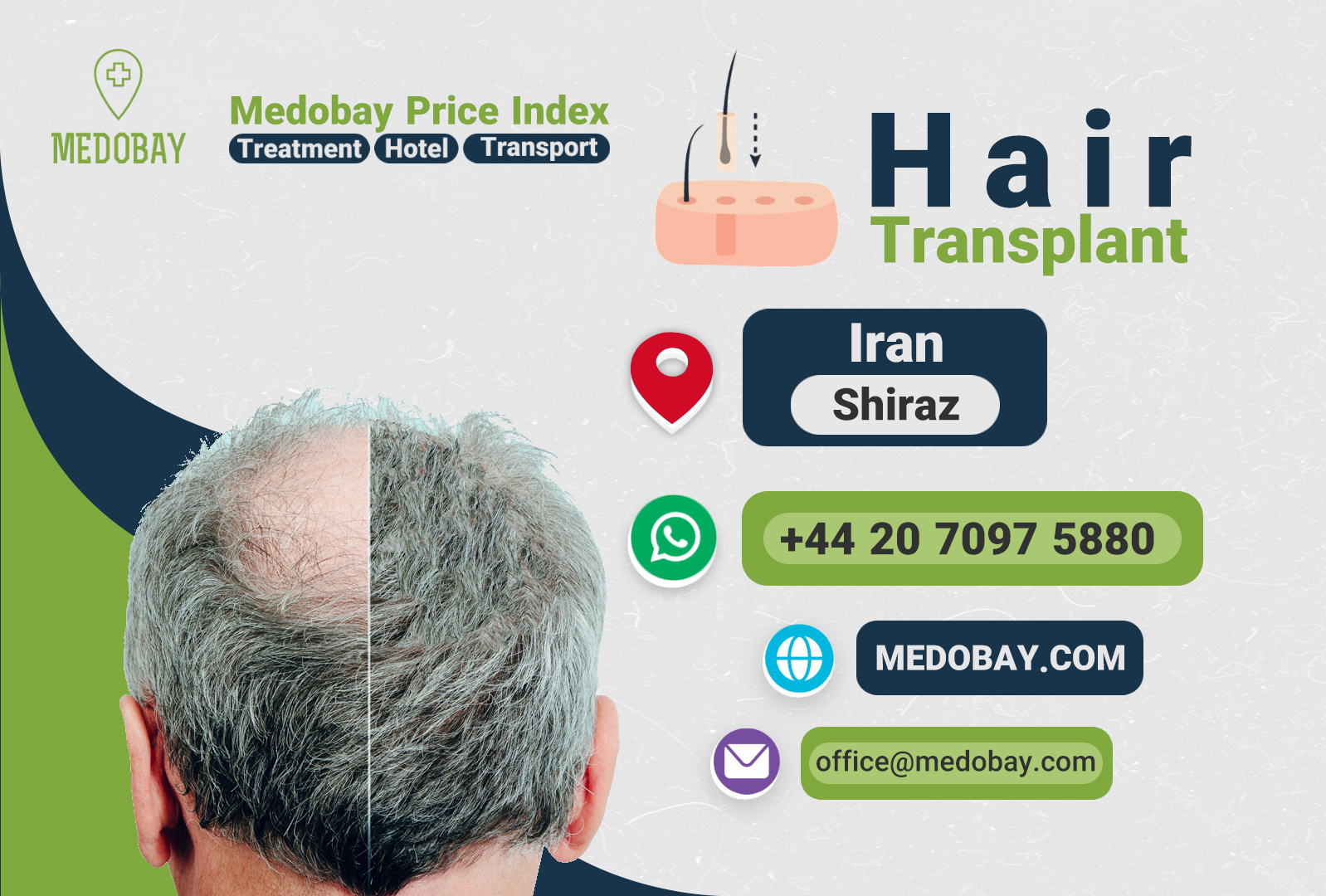 Hair Transplant Shiraz
