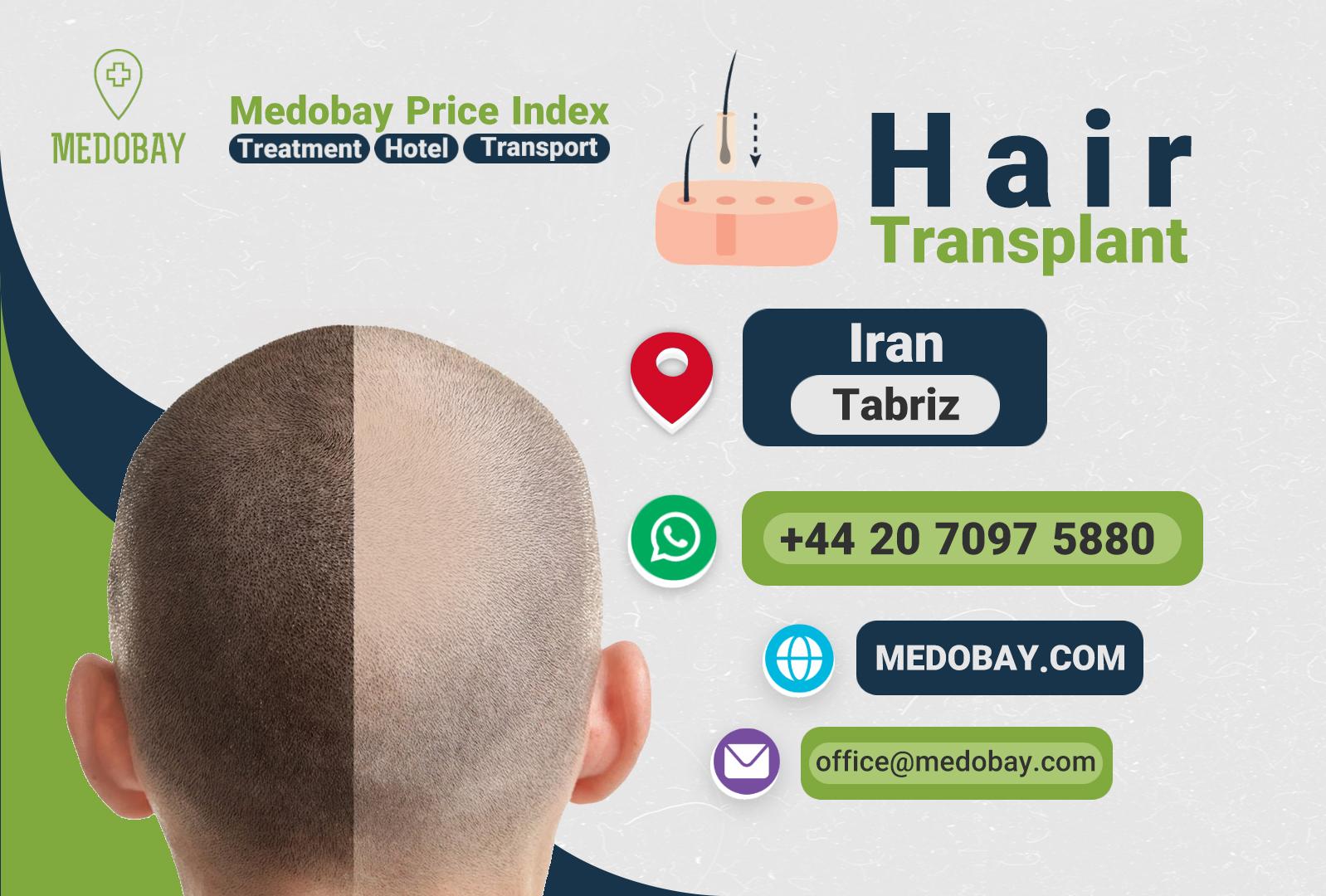 Hair Transplant Tabriz