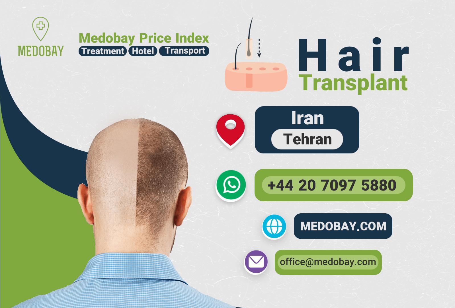 Hair Transplant Tehran
